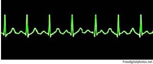 heartbeat monitor image